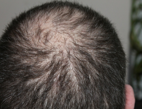 5 Early Signs Of Hair Loss